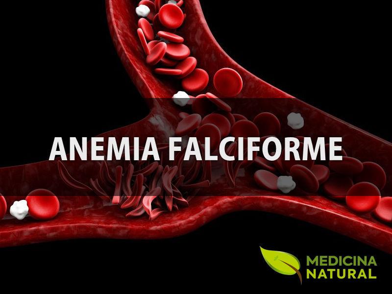 Anemia falciforme: causas, sintomas e tratamento
